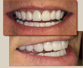 Before & After Concord Dental Services